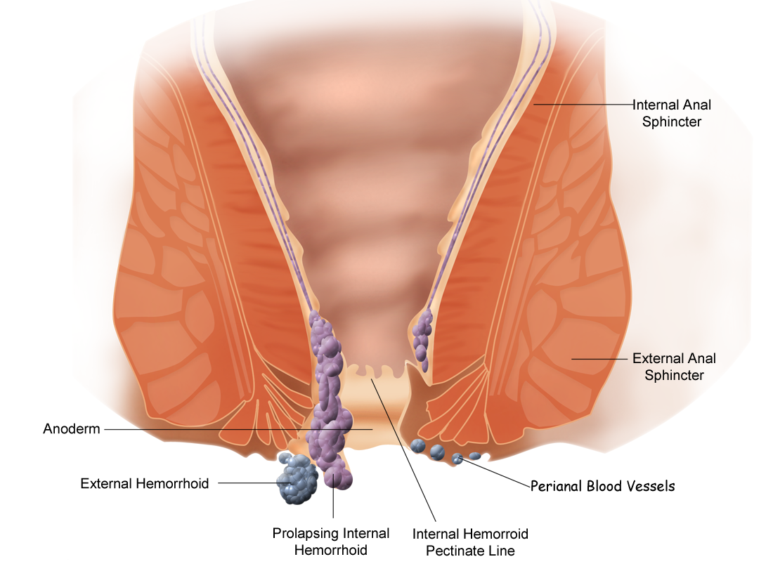 External Hemorrhoid Treatment | Natural Hemorrhoid Treatment