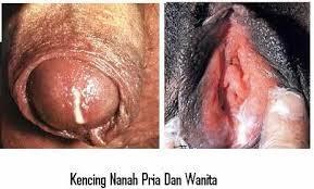 Obat infeksi saluran kencing pada ibu hamil