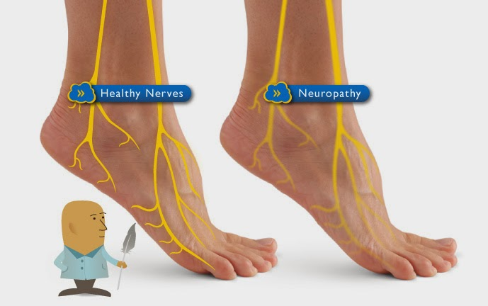 diabetic nerve pain treatment