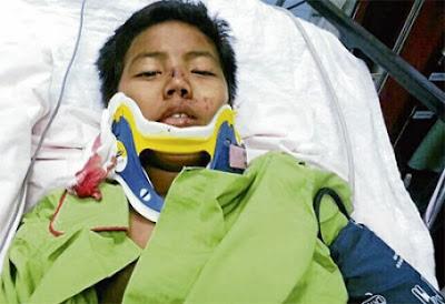 Pembedahan Keluar Peluru Dari Kerongkong Mohd Amar Berjaya
