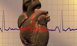 Semiología Cardiovascular Palpitaciones Síncope