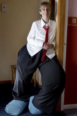 Un Hombre sufre una extraña enfermedad que provoca que sus piernas crezcan de manera desproporcionada con el resto de su cuerpo. 2