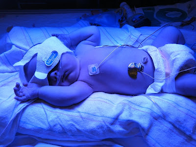 Spencer under Bili Light in NICU