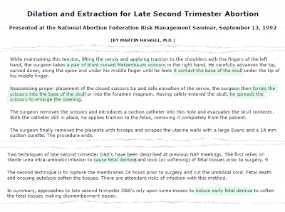 "Highlighted copy of Martin Haskell's D&X presentation paper at the National Abortion Federation. Highlighted sections show how the scissors are to be inserted into the back of the baby's neck, and note the use of the term ""fetal demise."""