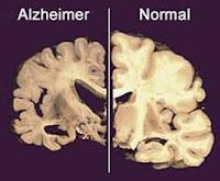 informasi tentang penyakit alzheimer