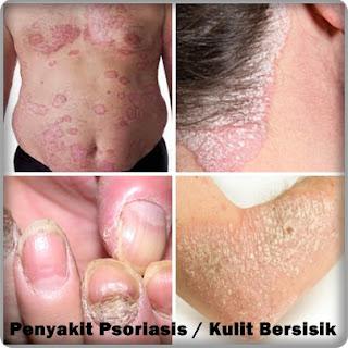 http://tipsatasipenyakit.blogspot.co.id/2015/11/obat-tradisional-penyakit-psoriasis.html