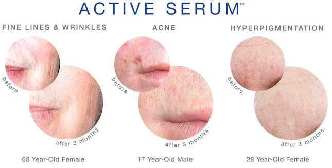 iS Clinical Active Serum Results for Acne, Wrinkles, Hyperpigmentation