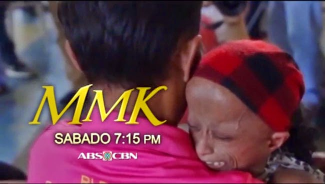 Watch Xyriel Manabat on MMK as Rochelle a Teenager Diagnosed with Progeria know as Hutchinson-Gilford Syndrome