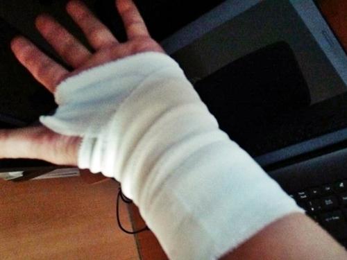 バリマラソン2015にむけて 手首を捻挫してしまいました