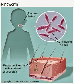 Fact ringworm is not a worm but a fungal skin infection new what causes ringworm ccuart Images