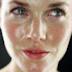 Penyebab Wajah Berminyak dan Perawatan Kulit Wajah Berminyak