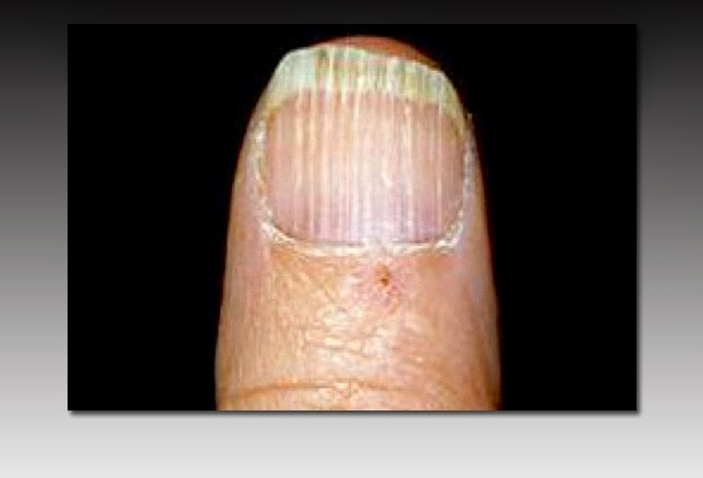 Deficiencies of both B-12 and folate can cause a swollen ... B12 Deficiency Nails