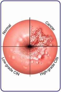 pathophysiology of cervical cancer pdf
