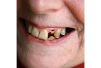 AWAS, gigi ompong bisa cepat pikun | 0812.202.88168, Obat ...