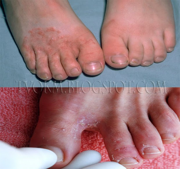Best Natural Remedy For Foot Fungus