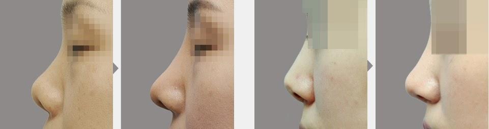 Foto sebelum dan sesudah operasi plastik hidung pesek di Bedah Plastik Wonjin-3