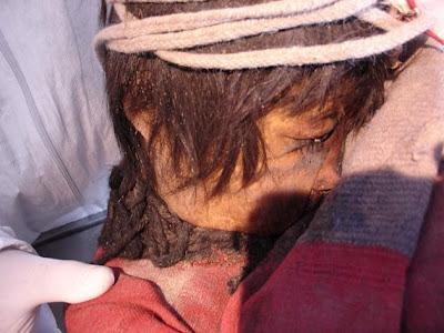Mumi anak usia 6 tahun yang juga ditemukan dan diduga tersambar petir.