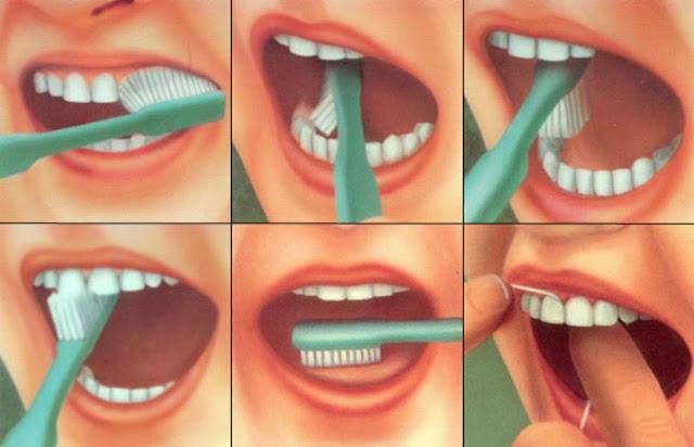 Artikel 9 Tips Cara Sikat Gigi Yang Benar, Baik Pakai Behel Atau Tidak Buat Anak Bayi Dan Orang Dewasa