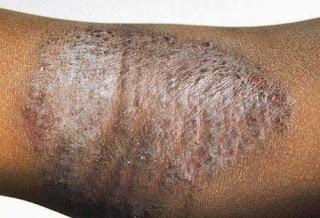 penyakit kulit kadas kurap