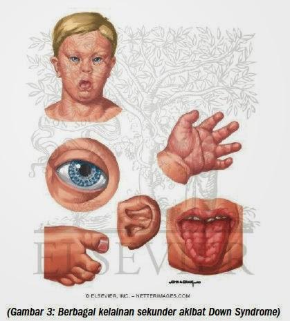 Down Syndrome . Penyebab Daun Sindrom