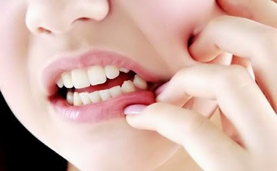 Obat Sakit Gigi Berlubang Paling Ampuh dan Mujarab