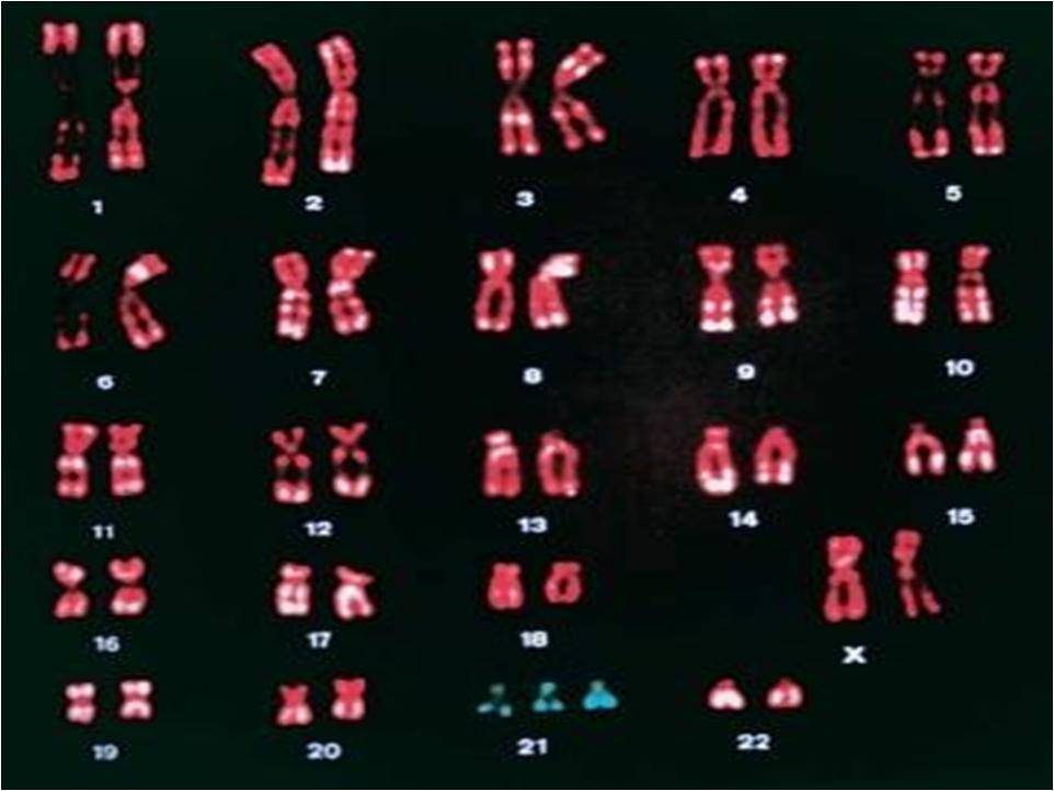 how to detect trisomy 22