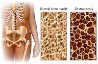 osteoporosis,osteoporosis,osteoporosis treatment,osteoporosis medications,osteoporosis prevention,osteoporosis risk factors,osteoporosis exercises,osteoporosis drugs,osteoporosis facts,osteoporosis causes,osteoporosis in men