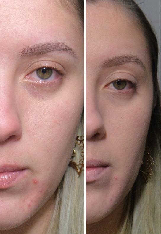 Base Maybelline - Pure Makeup -  Para Pele Mista e Oleosa.