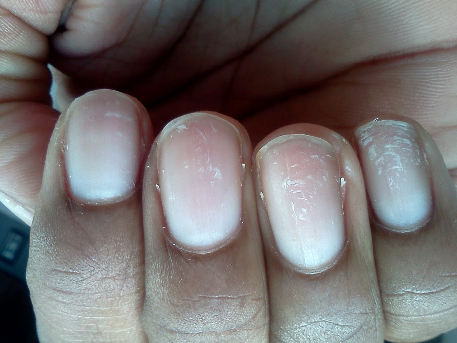 Or Acrylic Set With Not Only The Brittle Nails But Indentations Still Pretty At All I Think We Ll Stick To It For Special Occasions