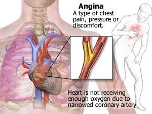 http://3.bp.blogspot.com/-GEN8fwBMnaY/UH6FBtrWICI/AAAAAAAAADA/3DKLgXpszgA/s1600/coronary2.jpg