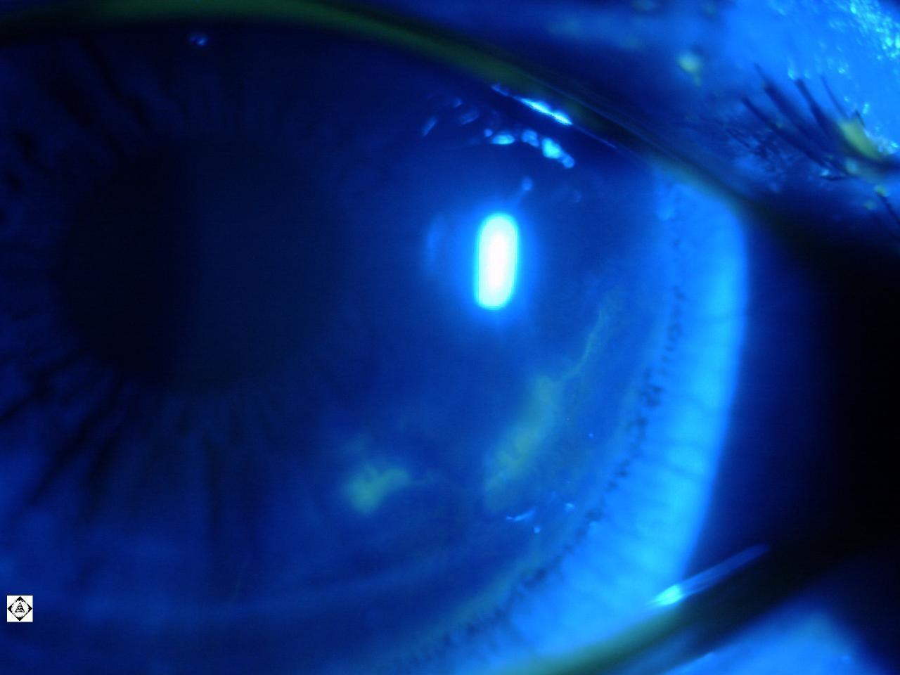 sonoran desert eye center herpes simplex keratitis