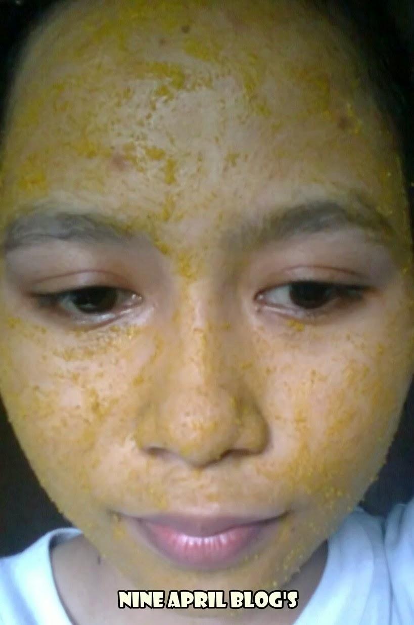 manfaat peeling wajah berjerawat