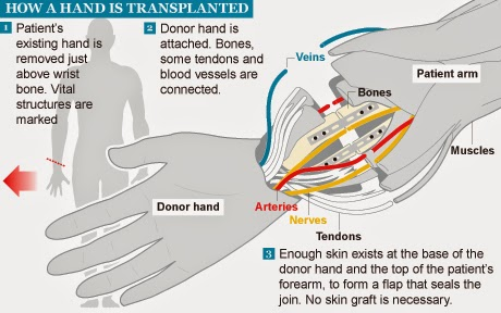 Video: Surgeons Carry Out Britain's First Hand Transplant