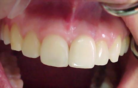 http://3.bp.blogspot.com/-GHT7tkJ_Slc/TVnPxMrOYaI/AAAAAAAAAC0/T0dXnFFFizo/s1600/Implante0101.jpg