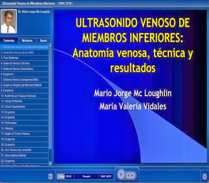 Todo Ecografía Médica: Ultrasonido Venoso de Miembros Inferiores