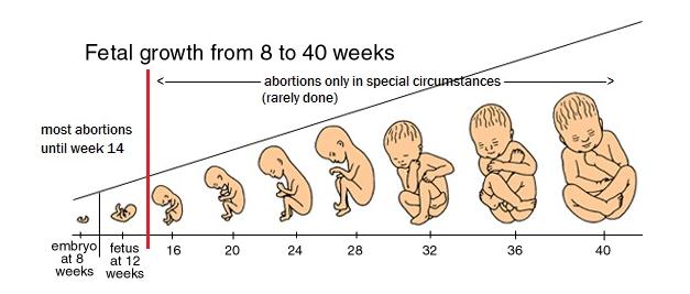 1+a+1+a+a+a+a+abortoh+crescimento+fetal+