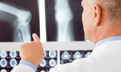 Manfaat dan Fakta Penting Kalsium Bagi Tubuh