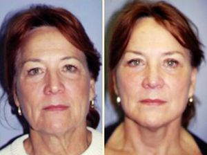 Do Facial Yoga Exercise Routines Work For Looking Younger The Solution To What Exercises Is Able Your Face And Throat Here