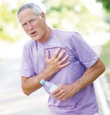 serangan jantung koroner penyebab kematian