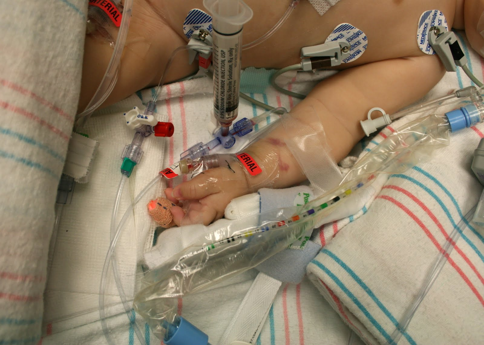 A Line Arterial Monitoring : A story of two moms surgery in photos