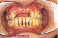 Periodontal disease/ root caries