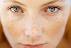 Cara cepat menghilangkan bintik hitam di wajah