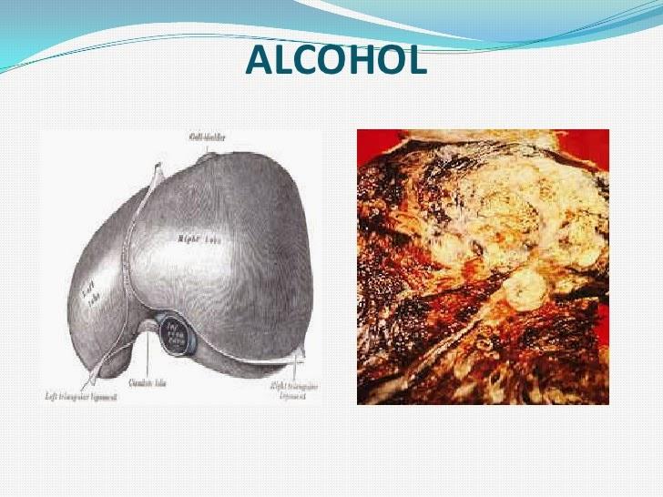 El eléboro la tintura la aplicación al alcoholismo
