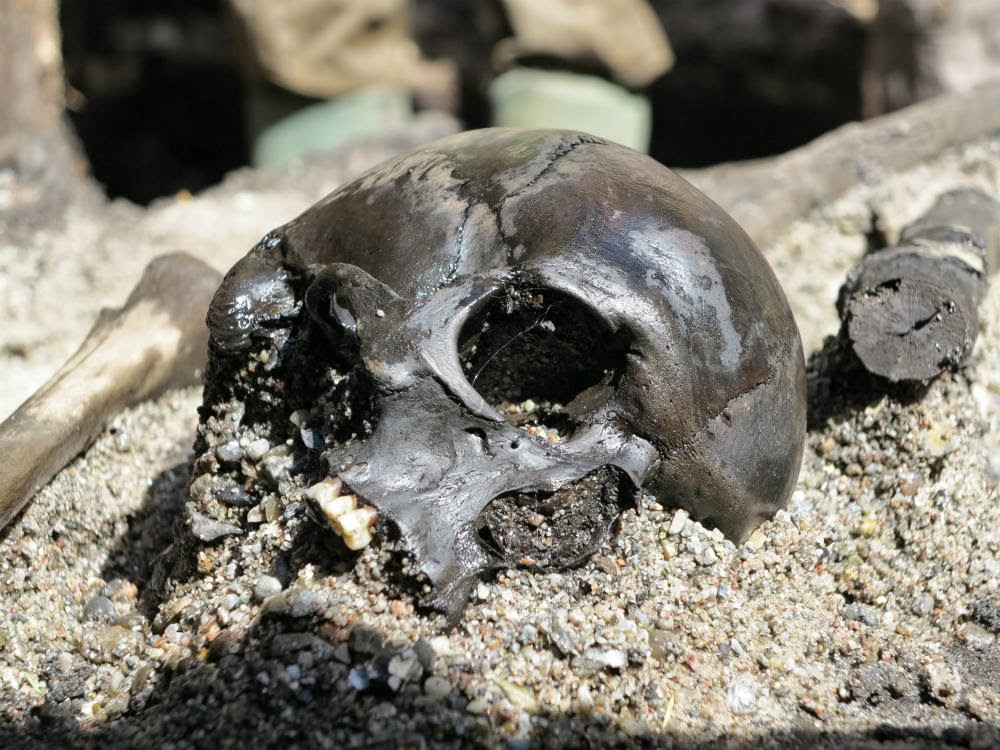 archaeology and the ancient human remains Teeth and calcified material are identified in most, if not all, archaeological digs  where human remains are found dental calculus is therefore a common find,.