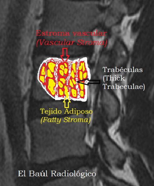 hemangioma vertebral: