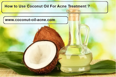 Coconut Oil For Acne,Coconut Oil  Acne