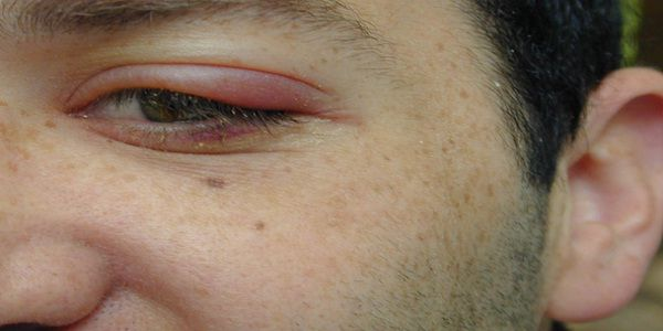 Swollen Eyelid Treatment Natural