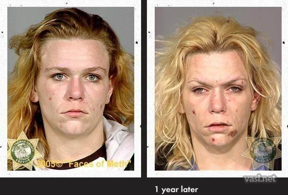 wajah keenam Wajah Para Pemakai Narkoba Sebelum Dan Sesudah Kecanduan