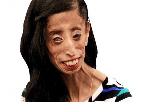 Motivational speaker Lizzie Velasquez, whose inspirational journey has led her to Malaysian