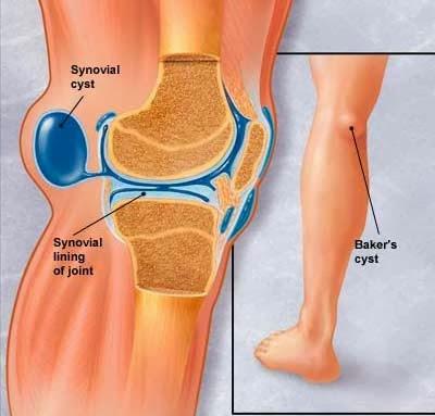 tumor in knie symptomen